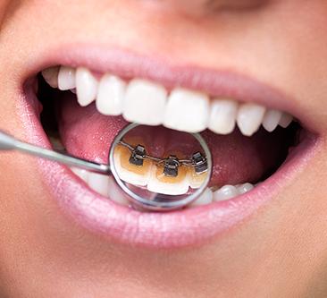 Incognito™ lingual braces