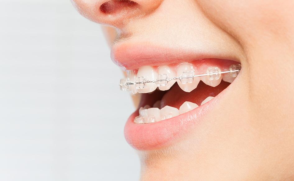 Ceramic fixed braces